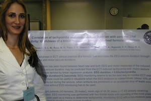 Eletroconvulsoterapia e taquicardia