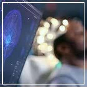 Eletroconvulsoterapia - ECT